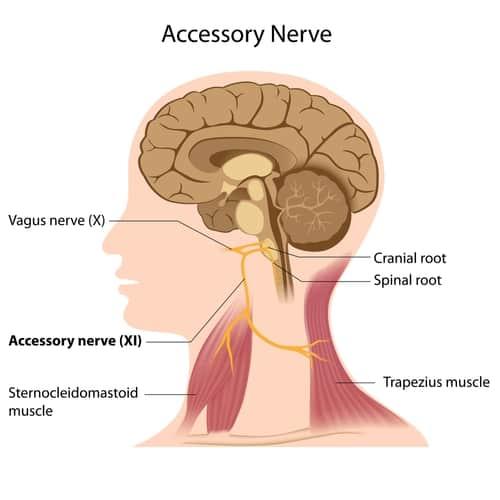 Migraine & Accessory Nerve