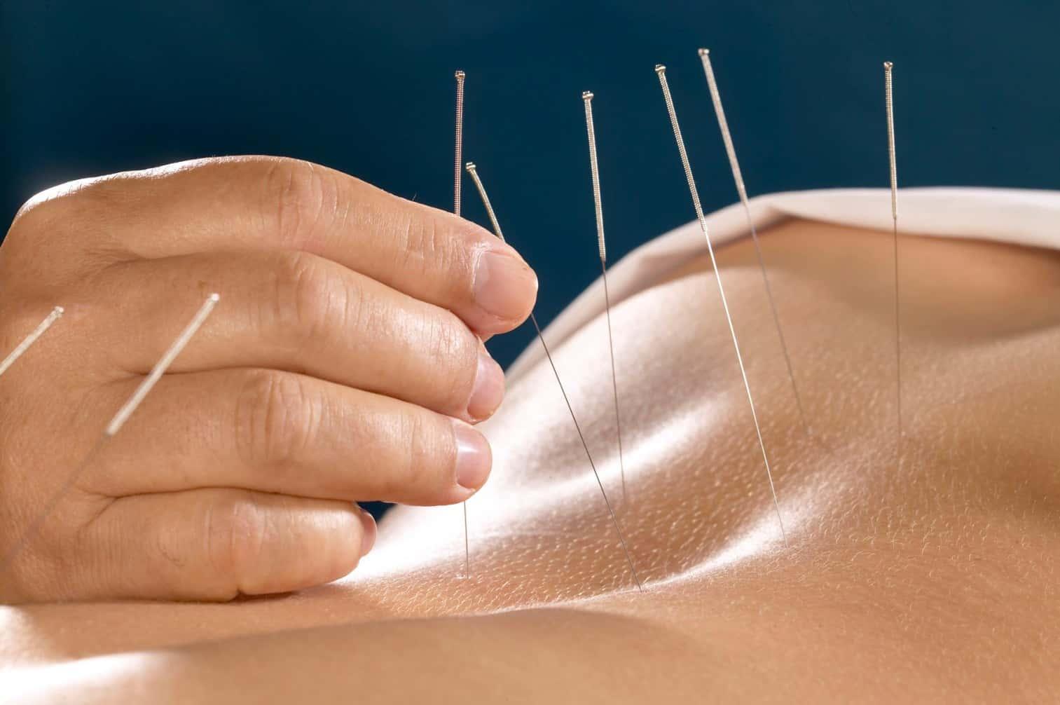 Acupuncture Treatment | Ajax