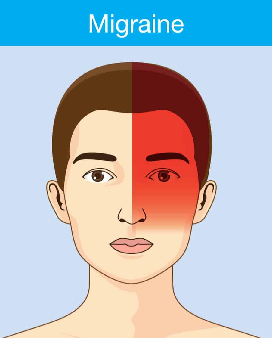 Migraine Headache | HMC Centre