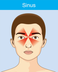 Sinus headaches symptoms are often accompanied by swelling of the face, the feeling of pressure inside the ears, and fever.