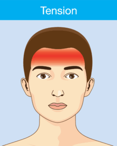 Tension headache symptom include radiating pain across the forehead or a constant pressure or tightness felt on both sides of the head.